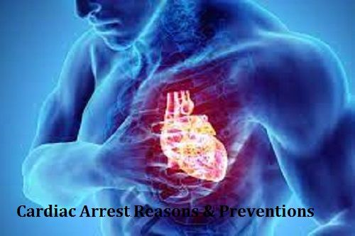 Cardiac Arrest Causes and Prevention